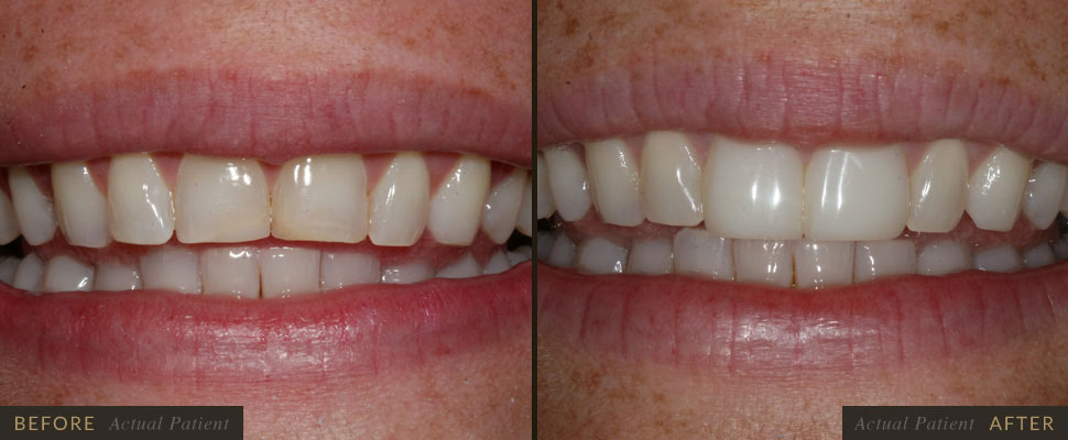 Cosmetic bonding can improve the appearance of discolored teeth.