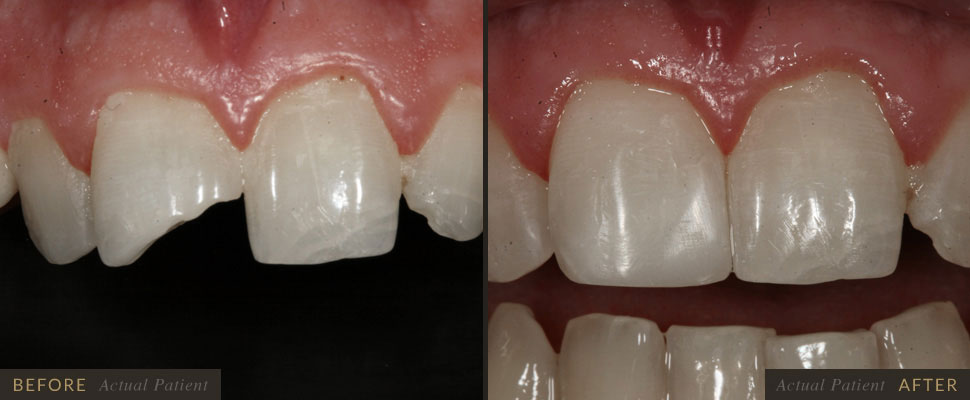 Adhesive dentistry deals with bonding to the natural substance of teeth, enamel and dentin.