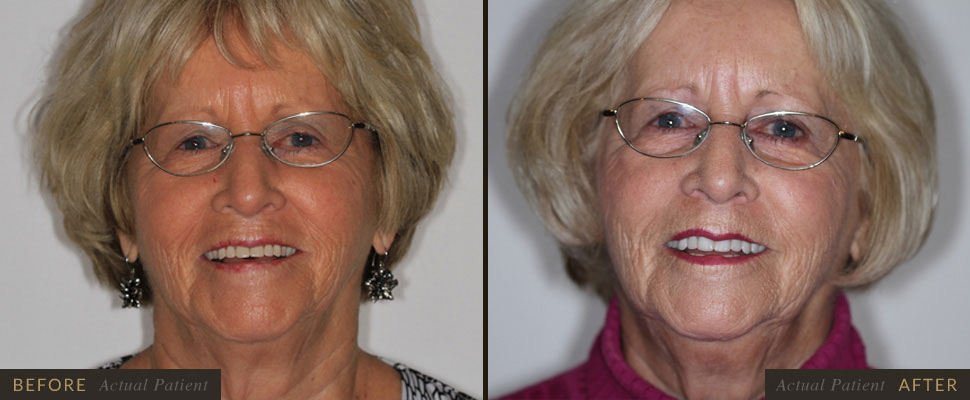 Advances in materials make today's cosmetic dentures more natural looking and comfortable.