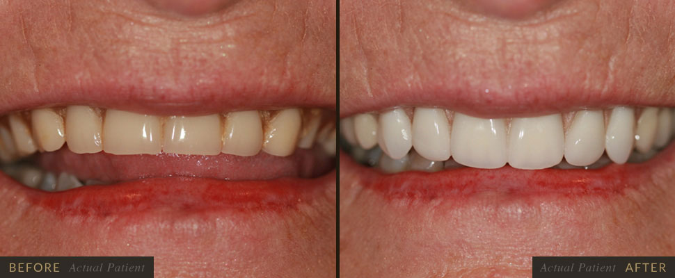 Five Forks Dental Care - Dentures in Greenville