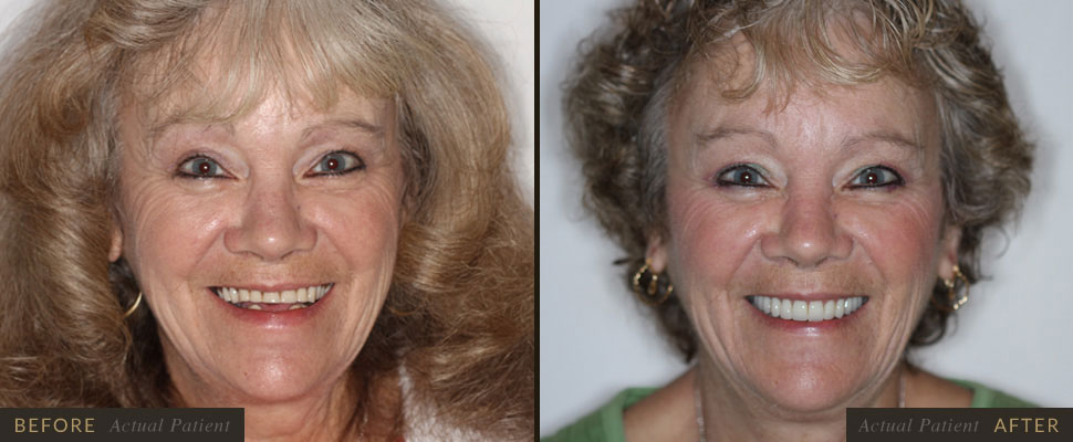 Five Forks Dental Care - Dentures in Simpsonville