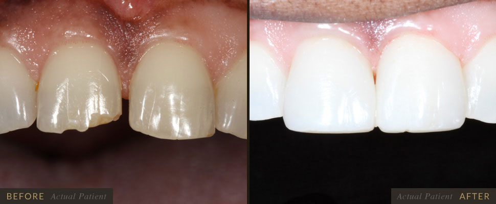 Gaps, triangles, or spaces between the teeth can be embarrassing and also a health concern.