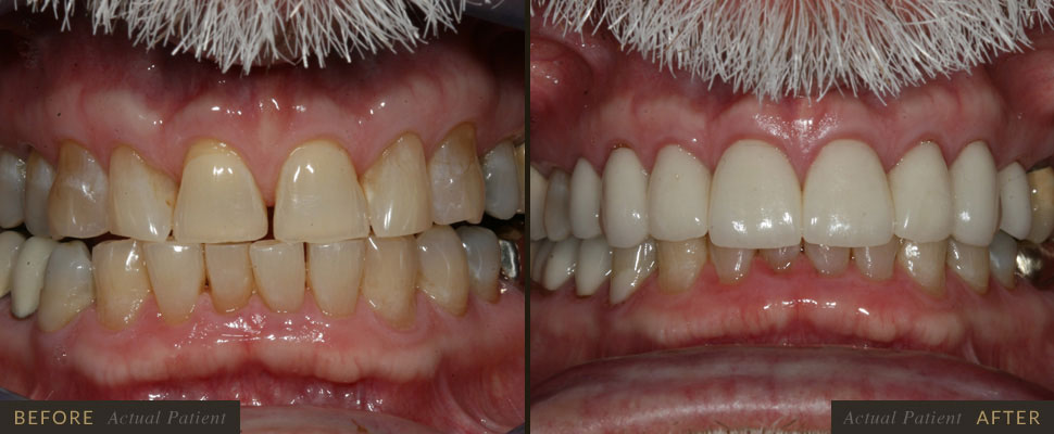 Gaps or spaces between the teeth can be easily corrected with a smile makeover, with the use of orth