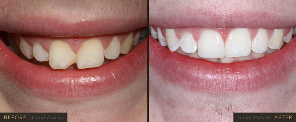 We believe braces provide an opportunity to enhance health and self-esteem and may improve a person'