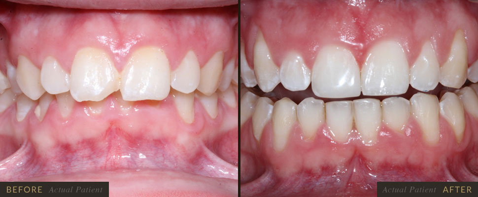 Dental braces are devices used in orthodontics that align and straighten teeth and help position the