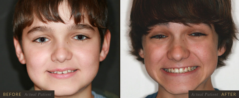 Orthodontic braces can correct gaps in your teeth.