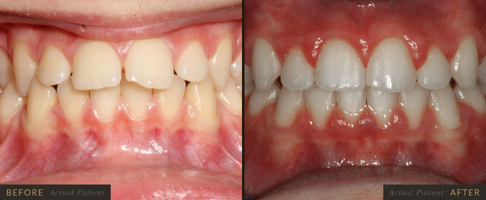 Five Forks Dental Care is the top provider for braces in Simpsonville.