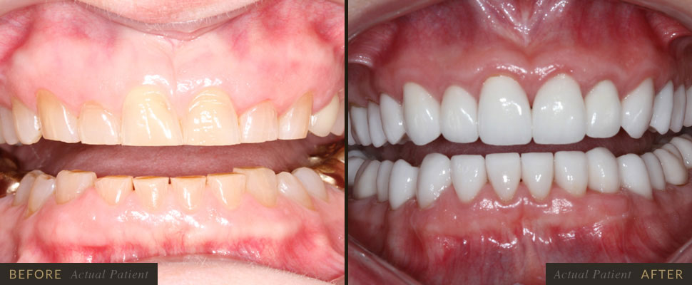 Teeth that have small chips or cracks can usually be corrected with composite bonding, inlays or onl