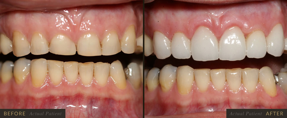Larger chips and broken teeth may require porcelain veneers or dental crowns.