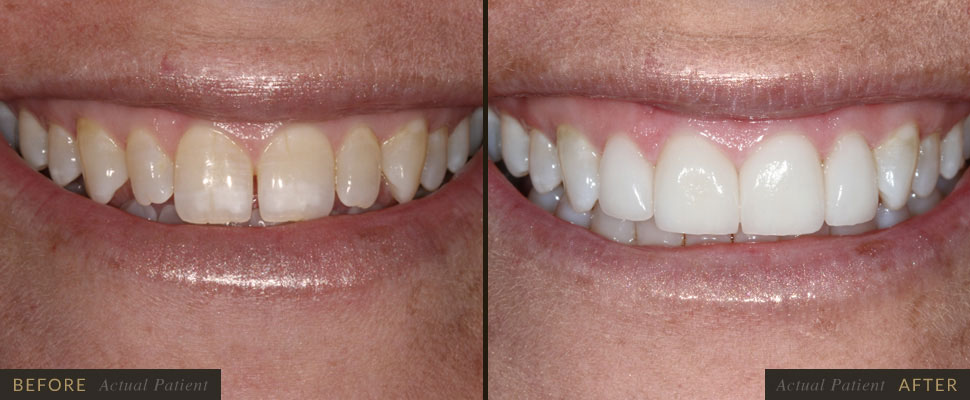Our staff will use veneers to correct your chipped teeth!