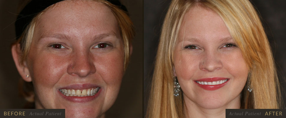 Our staff can fix your cracked teeth using veneers!