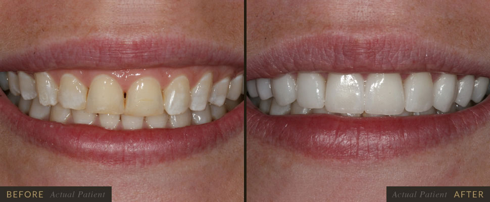 Let us whiten your smile with our porcelain veneers!
