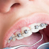 braces orthodontics